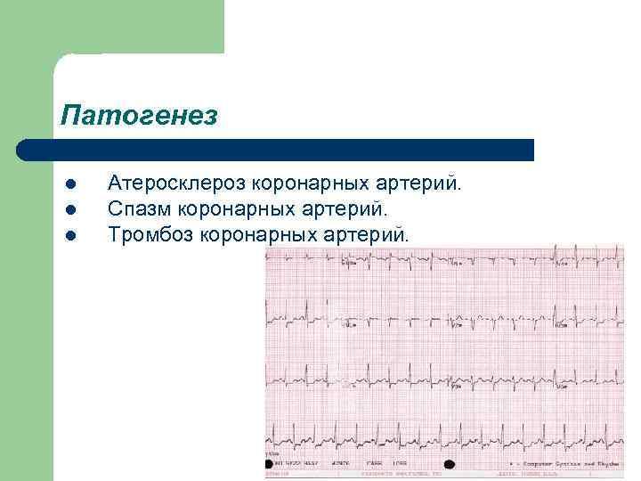 Патогенез l l l Атеросклероз коронарных артерий. Спазм коронарных артерий. Тромбоз коронарных артерий.