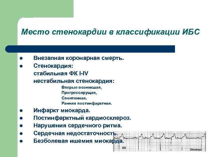 Место стенокардии в классификации ИБС l l Внезапная коронарная смерть. Стенокардия: стабильная ФК I-IV