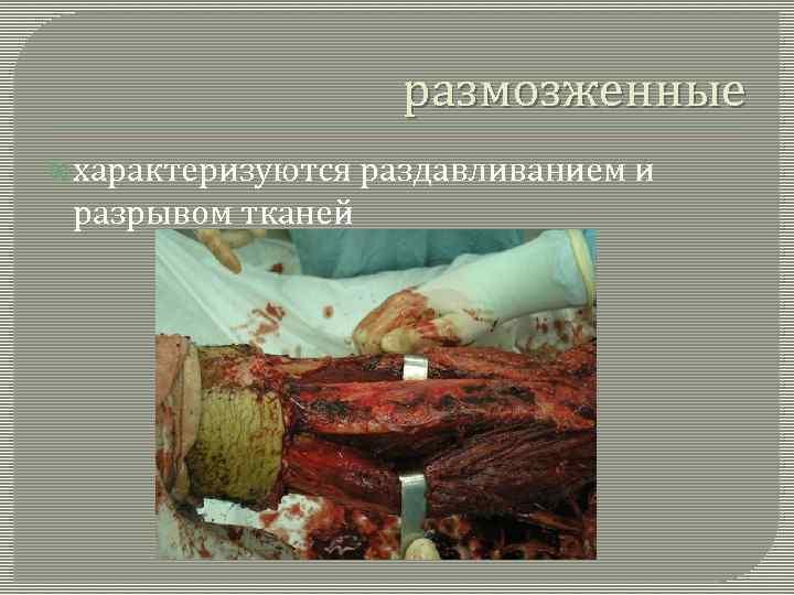 размозженные характеризуются разрывом тканей раздавливанием и