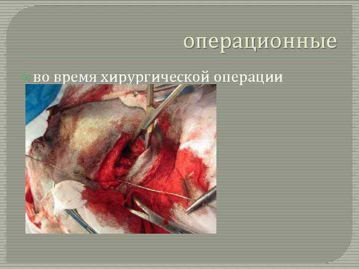 операционные во время хирургической операции