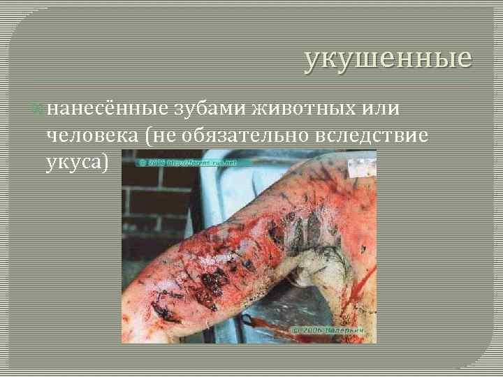 укушенные нанесённые зубами животных или человека (не обязательно вследствие укуса)
