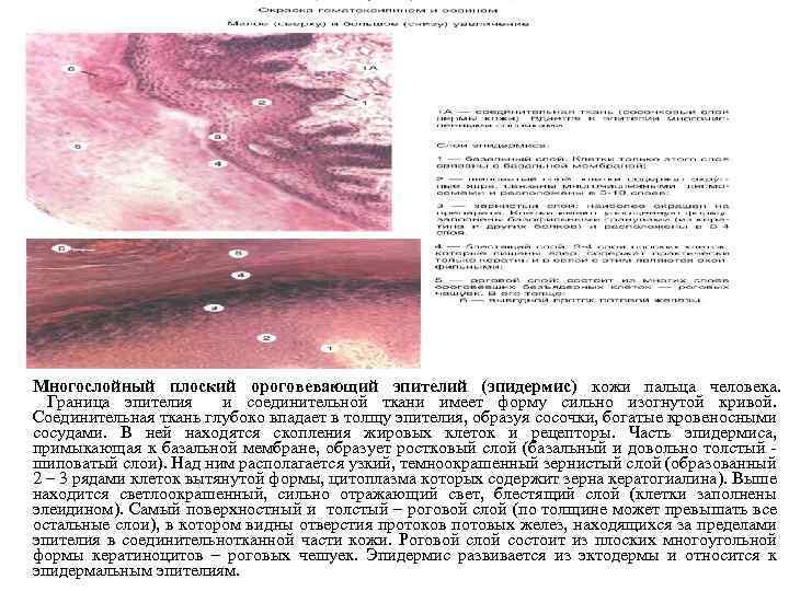 Многослойный плоский ороговевающий эпителий (эпидермис) кожи пальца человека. Граница эпителия и соединительной ткани имеет