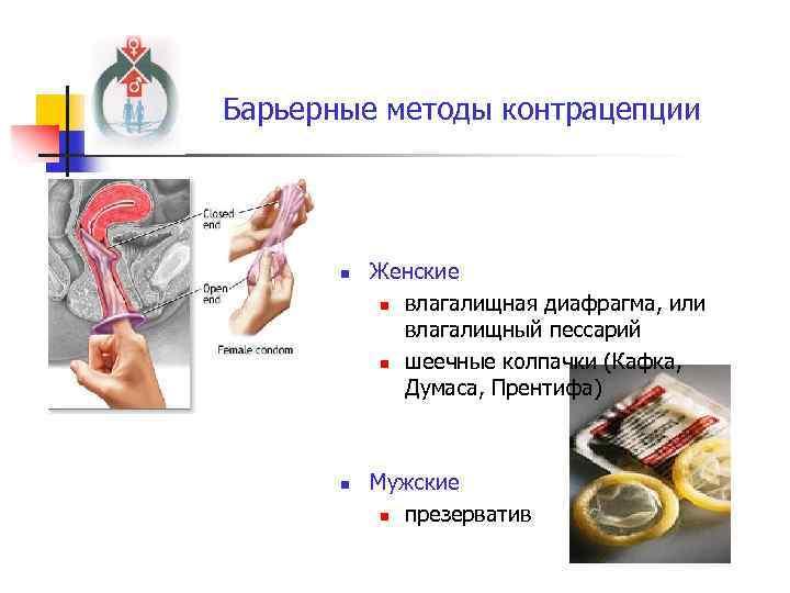 Барьерные методы контрацепции n n Женские n влагалищная диафрагма, или влагалищный пессарий n шеечные