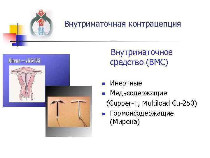 Внутриматочная контрацепция Внутриматочное средство (ВМС) Инертные n Медьсодержащие (Cupper-T, Multiload Cu-250) n Гормонсодержащие (Мирена)