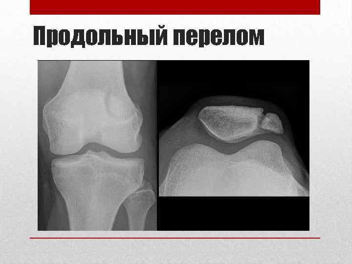 Продольный перелом
