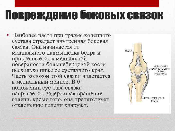 Повреждение боковых связок • Наиболее часто при травме коленного сустава страдает внутренняя боковая связка.