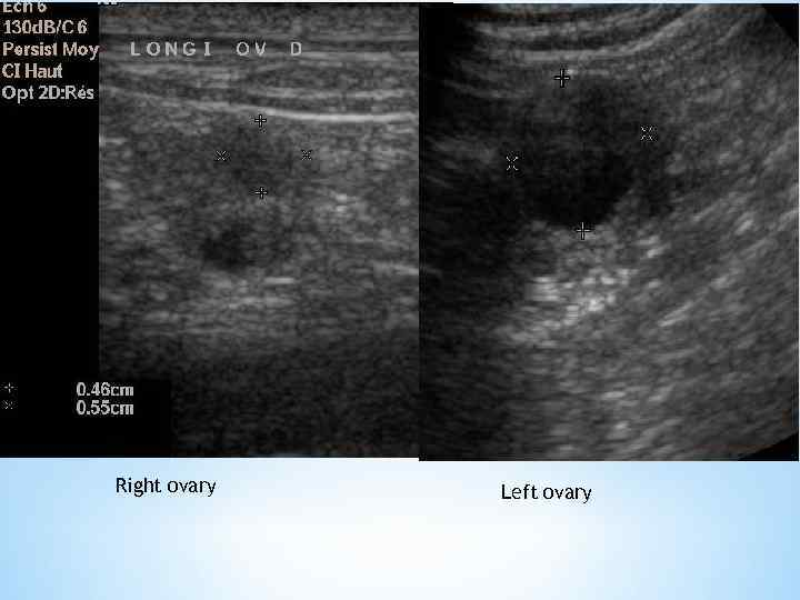 Right ovary Left ovary