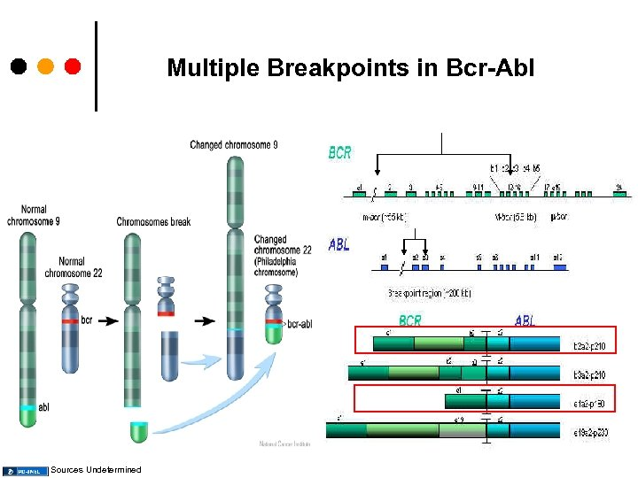 Multiple Breakpoints in Bcr-Abl Sources Undetermined