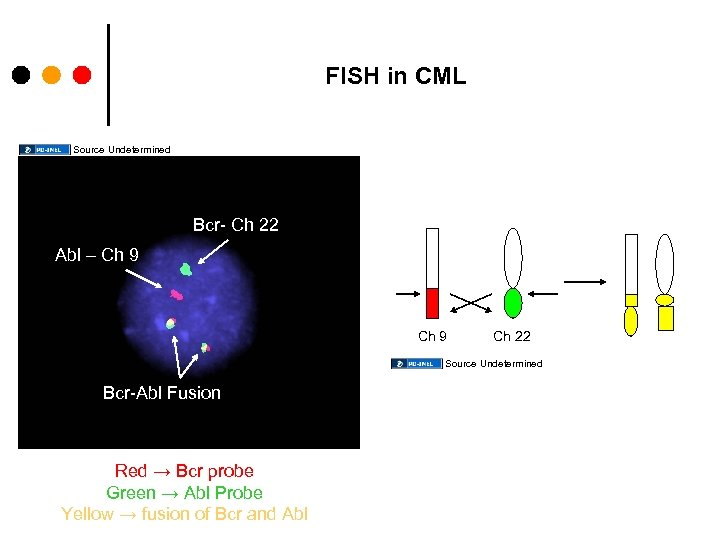 FISH in CML Source Undetermined Bcr- Ch 22 Abl – Ch 9 Ch 22