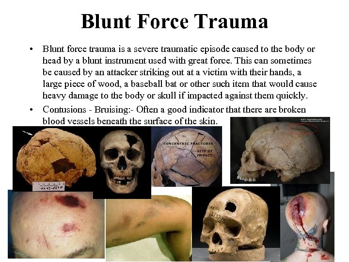 Blunt Force Trauma • Blunt force trauma is a severe traumatic episode caused to