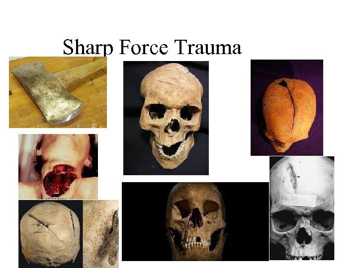 Sharp Force Trauma