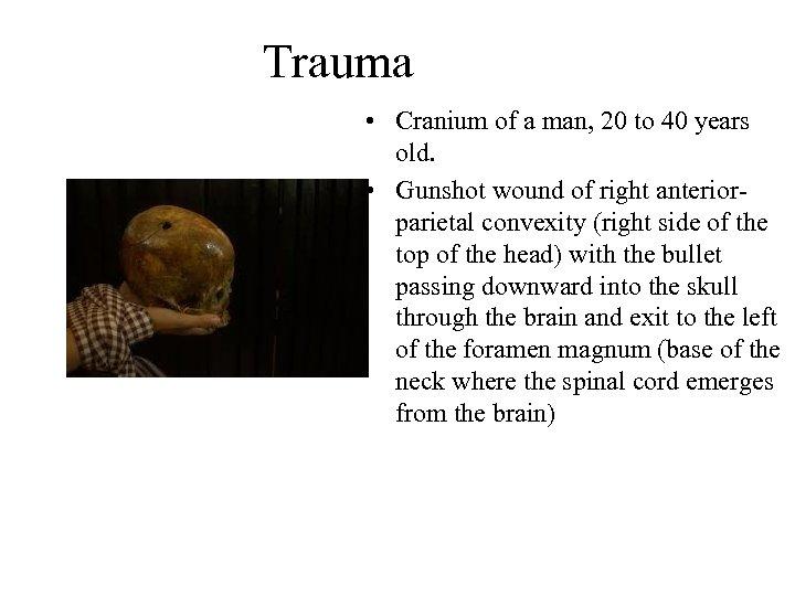 Trauma • Cranium of a man, 20 to 40 years old. • Gunshot wound
