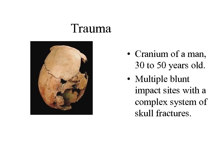 Trauma • Cranium of a man, 30 to 50 years old. • Multiple blunt