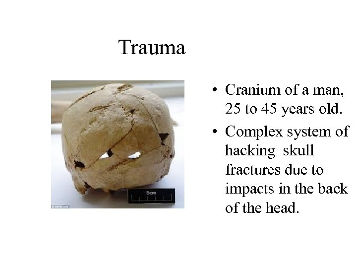Trauma • Cranium of a man, 25 to 45 years old. • Complex system