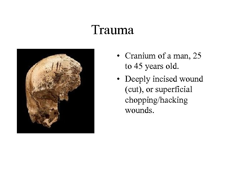 Trauma • Cranium of a man, 25 to 45 years old. • Deeply incised