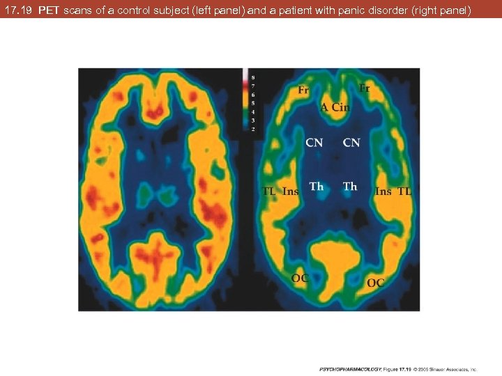 17. 19 PET scans of a control subject (left panel) and a patient with