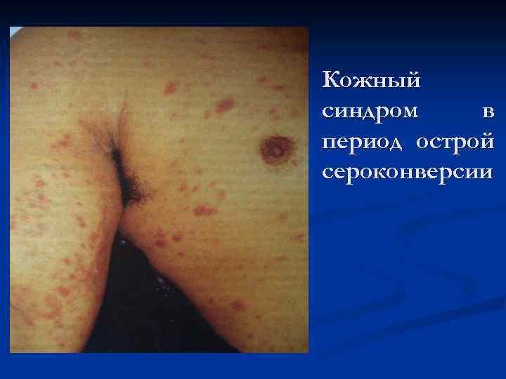 Кожный синдром в период острой сероконверсии