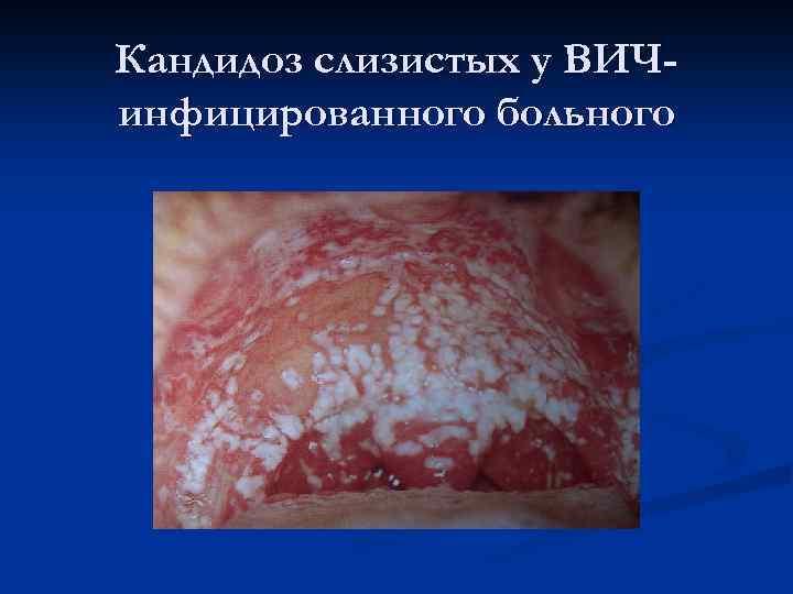 Кандидоз слизистых у ВИЧинфицированного больного