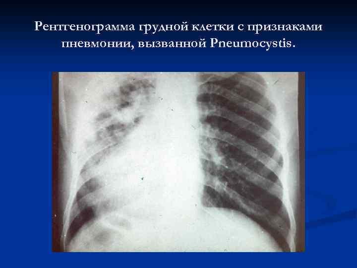 Рентгенограмма грудной клетки с признаками пневмонии, вызванной Pneumocystis.