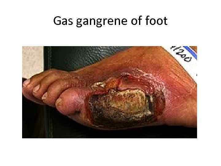 Gas gangrene of foot