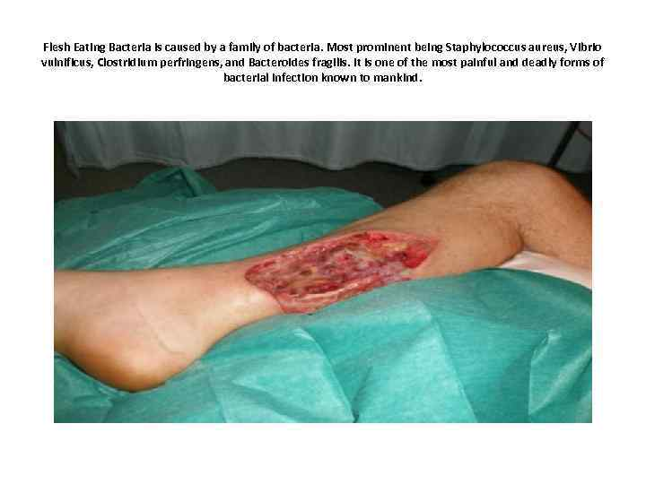 Flesh Eating Bacteria is caused by a family of bacteria. Most prominent being Staphylococcus