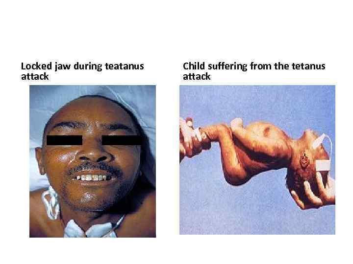 Locked jaw during teatanus attack Child suffering from the tetanus attack