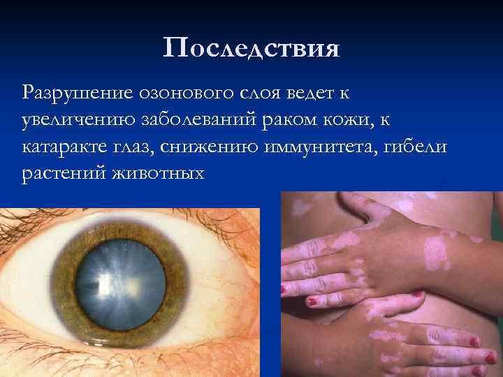 Последствия Разрушение озонового слоя ведет к увеличению заболеваний раком кожи, к катаракте глаз, снижению