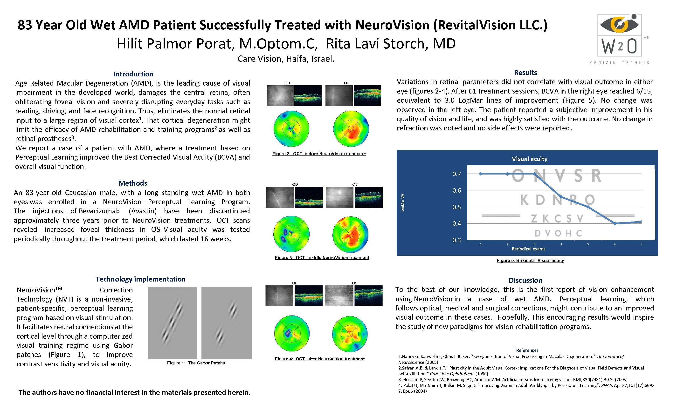 83 Year Old Wet AMD Patient Successfully Treated with Neuro. Vision (Revital. Vision LLC.