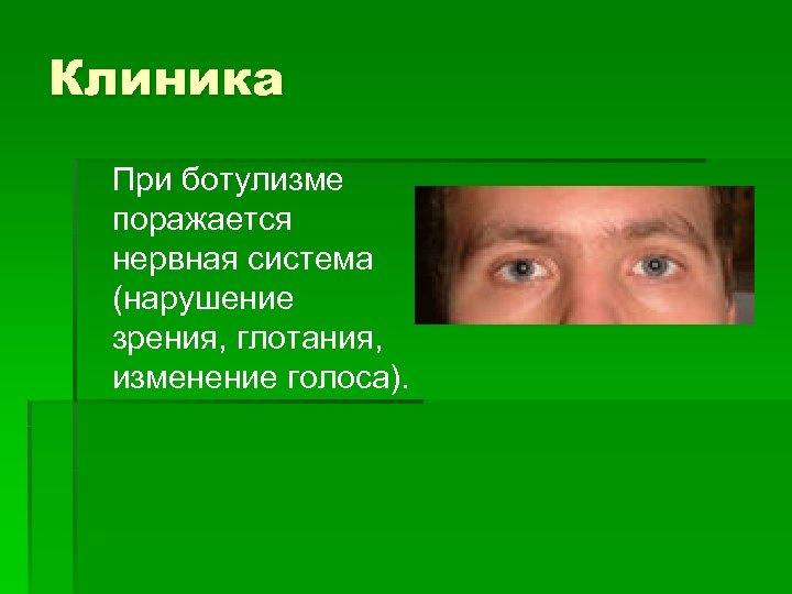 Клиника При ботулизме поражается нервная система (нарушение зрения, глотания, изменение голоса).