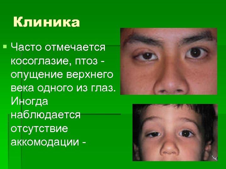 Клиника § Часто отмечается косоглазие, птоз - опущение верхнего века одного из глаз. Иногда