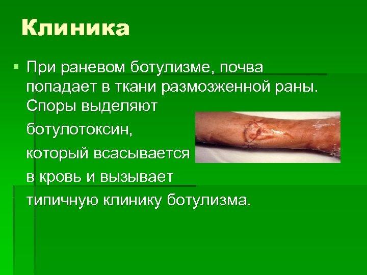 Клиника § При раневом ботулизме, почва попадает в ткани размозженной раны. Споры выделяют ботулотоксин,
