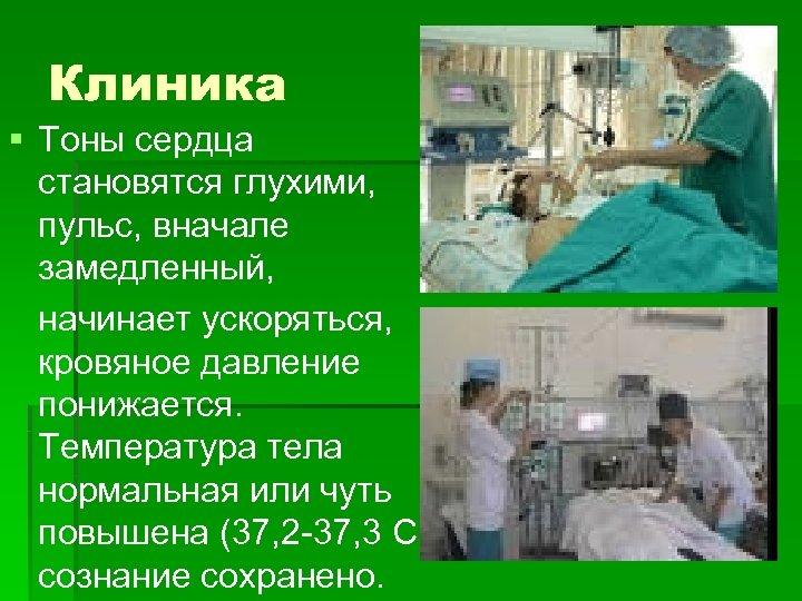 Клиника § Тоны сердца становятся глухими, пульс, вначале замедленный, начинает ускоряться, кровяное давление понижается.