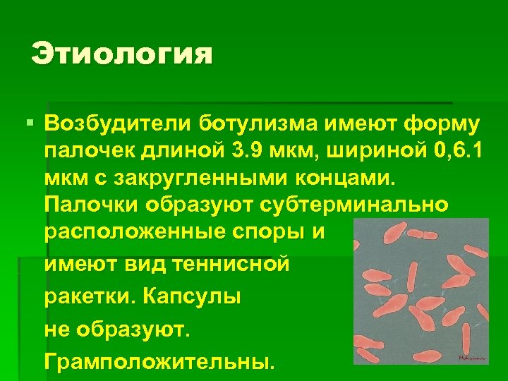 Этиология § Возбудители ботулизма имеют форму палочек длиной 3. 9 мкм, шириной 0, 6.