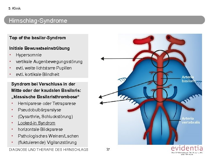 5. Klinik Hirnschlag-Syndrome Top of the basilar-Syndrom Initiale Bewusstseinstrübung • • Hypersomnie vertikale Augenbewegungsstörung
