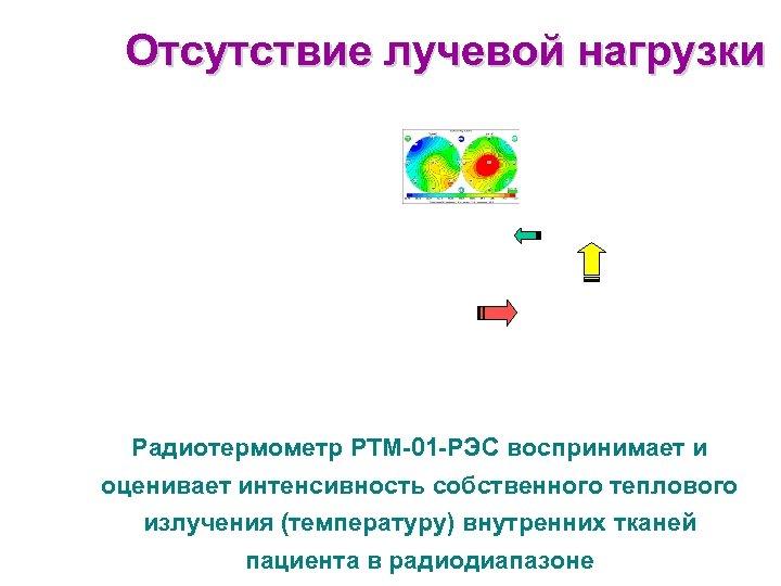 Отсутствие лучевой нагрузки Радиотермометр РТМ-01 -РЭС воспринимает и оценивает интенсивность собственного теплового излучения (температуру)
