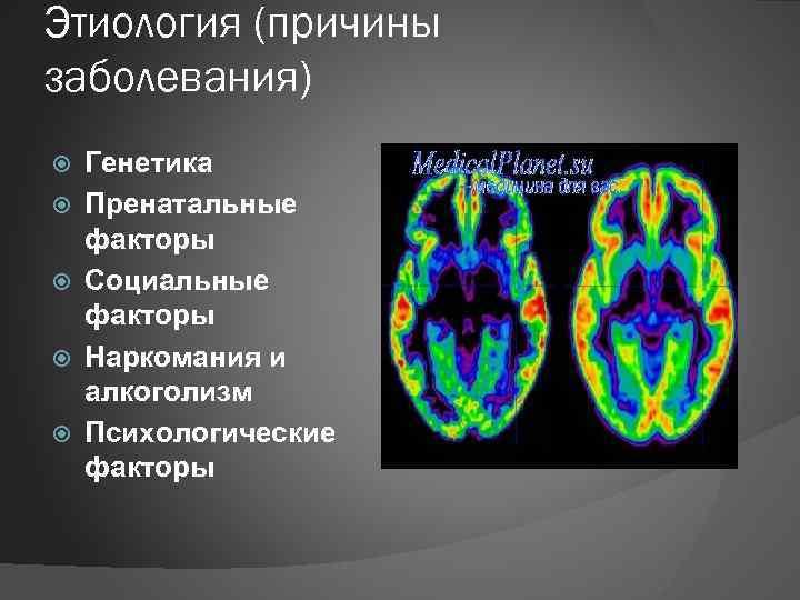 Этиология (причины заболевания) Генетика Пренатальные факторы Социальные факторы Наркомания и алкоголизм Психологические факторы