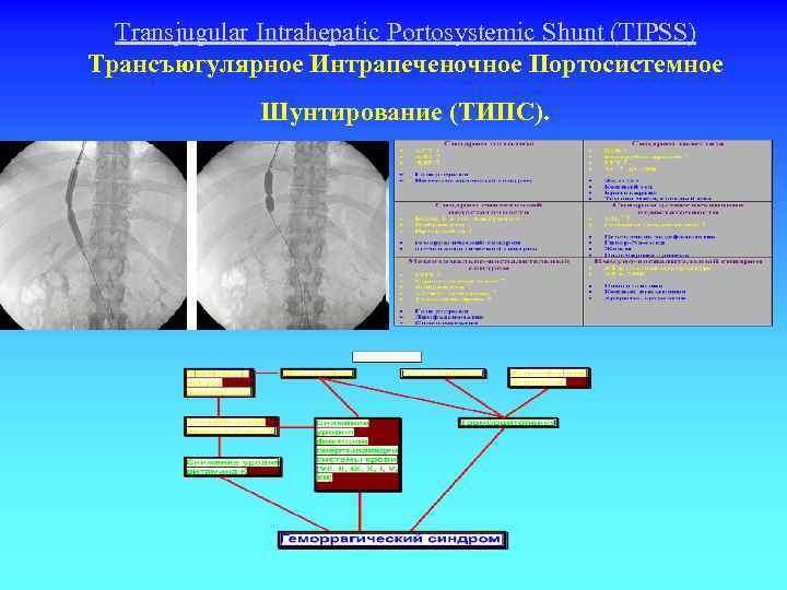Transjugular Intrahepatic Portosystemiс Shunt (TIPSS) Трансъюгулярное Интрапеченочное Портосистемное Шунтирование (ТИПС).