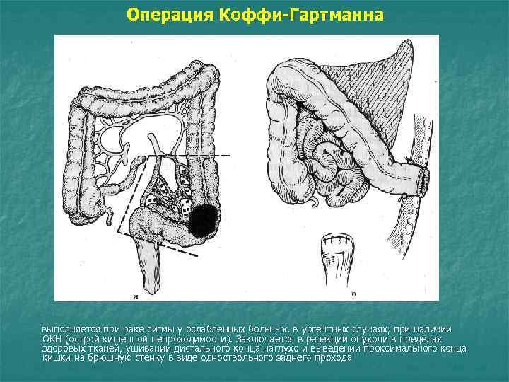 Операция Коффи-Гартманна выполняется при раке сигмы у ослабленных больных, в ургентных случаях, при наличии