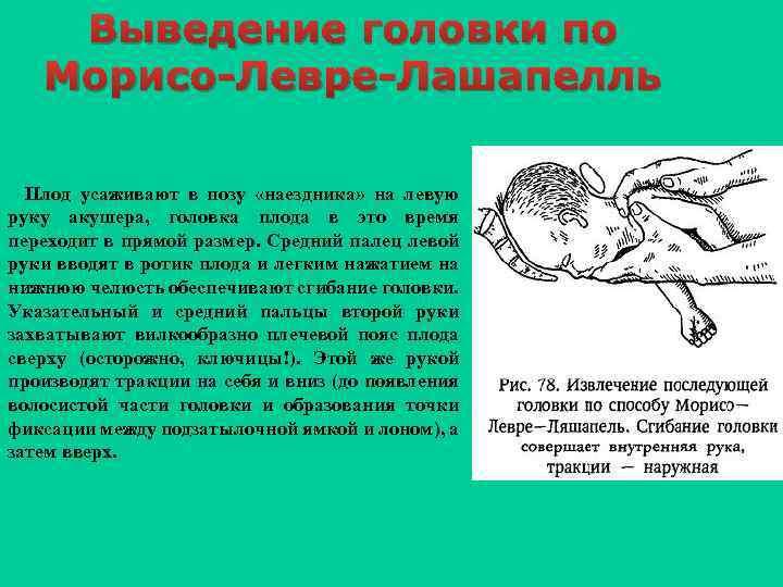 Выведение головки по Морисо-Левре-Лашапелль Плод усаживают в позу «наездника» на левую руку акушера, головка
