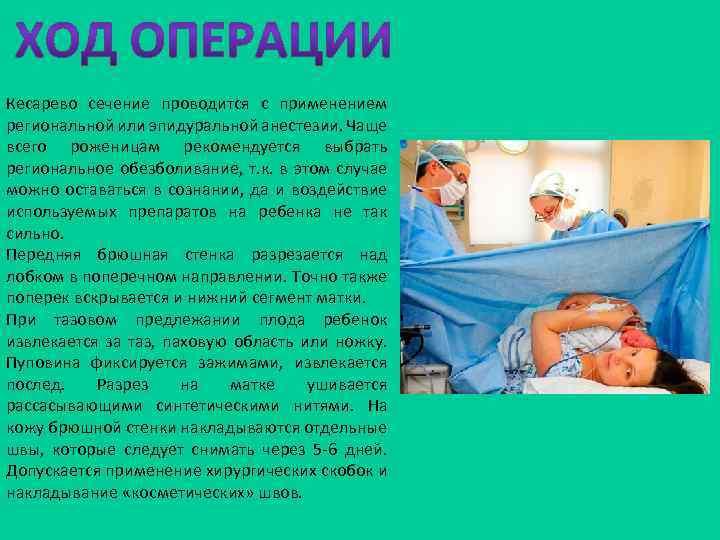 Кесарево сечение проводится с применением региональной или эпидуральной анестезии. Чаще всего роженицам рекомендуется выбрать