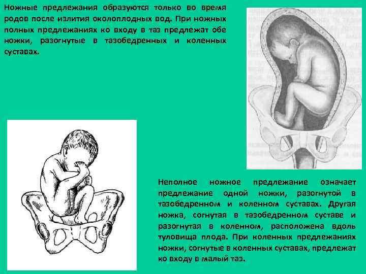 Ножные предлежания образуются только во время родов после излития околоплодных вод. При ножных полных