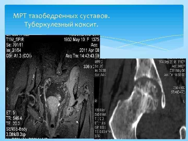 МРТ тазобедренных суставов. Туберкулезный коксит.