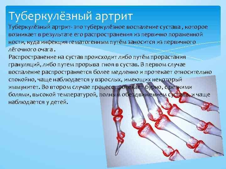 Туберкулёзный артрит- это туберкулёзное воспаление сустава , которое возникает в результате его распространения из