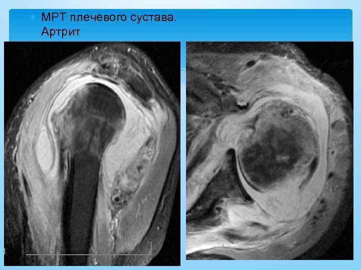 МРТ плечевого сустава. Артрит