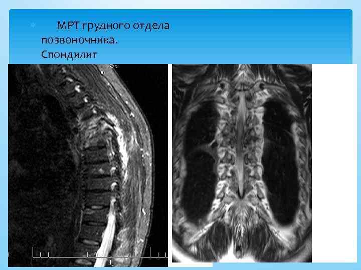 МРТ грудного отдела позвоночника. Спондилит