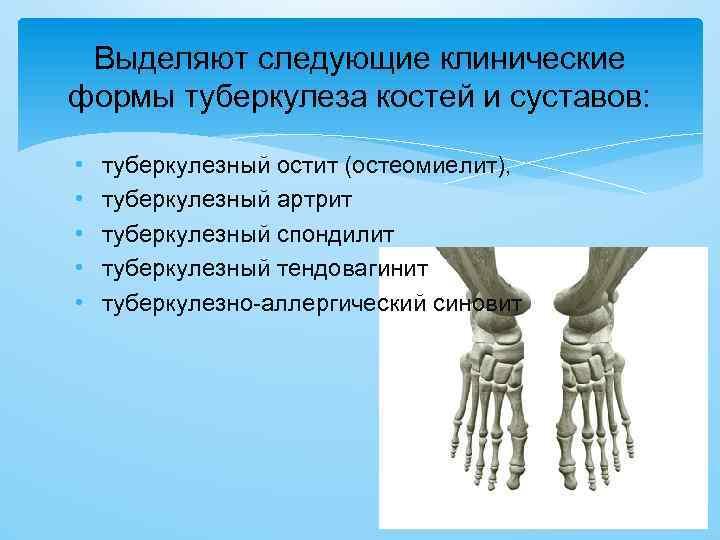 Выделяют следующие клинические формы туберкулеза костей и суставов: • • • туберкулезный остит (остеомиелит),
