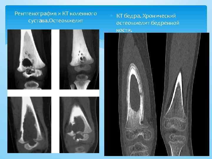 Рентгенография и КТ коленного сустава. Остеомиелит КТ бедра. Хронический остеомиелит бедренной кости.
