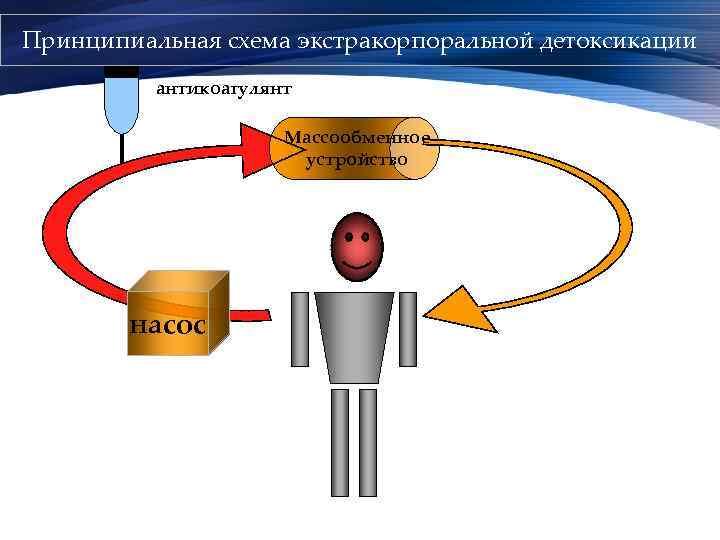 Принципиальная схема экстракорпоральной детоксикации антикоагулянт Массообменное устройство насос