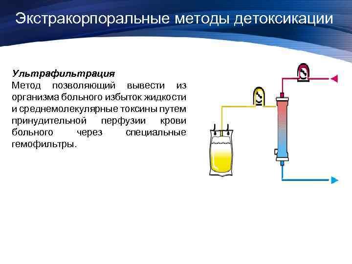 Экстракорпоральные методы детоксикации Ультрафильтрация Метод позволяющий вывести из организма больного избыток жидкости и среднемолекулярные