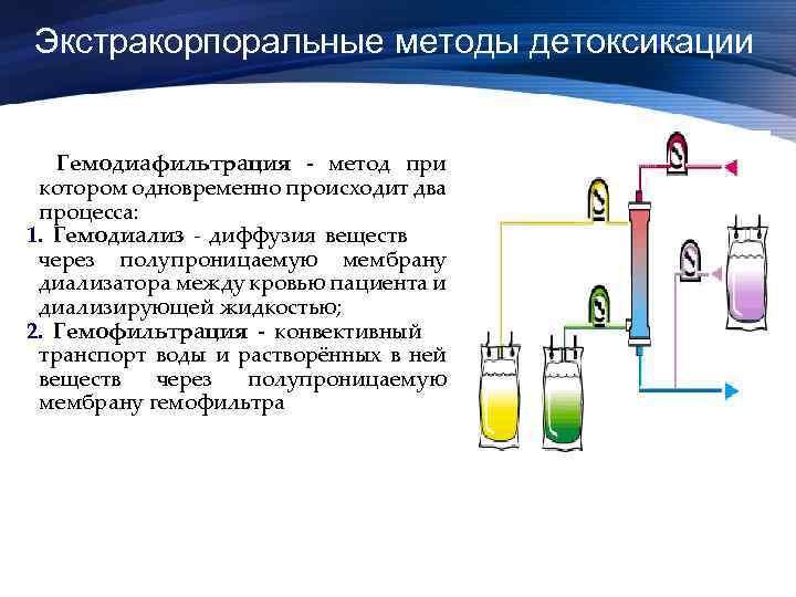 Экстракорпоральные методы детоксикации Гемодиафильтрация - метод при котором одновременно происходит два процесса: 1. Гемодиализ